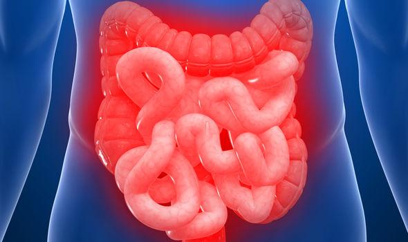 संग्रहणी रोग का सफल आयुर्वेदिक उपचार / Ayurvedic Treatment For Irritable Bowel Syndrome And Acid Peptic Disorder