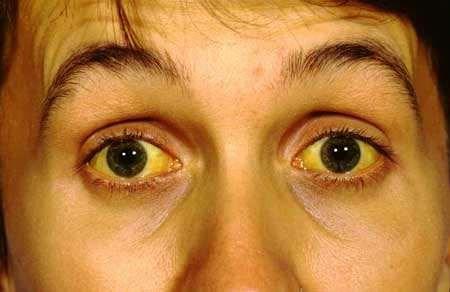 पीलिया का आयुर्वेदिक विधि से जड़ से सफाया कैसे करें/Ayurvedic Treatment For Jaundice